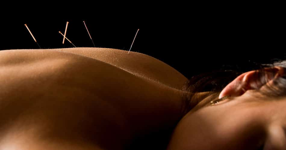 Acupuncture For Healings